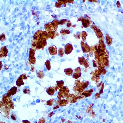 IHC of ALK/CD246 on a FFPE Anaplastic Large Cell Lymphoma Tissue