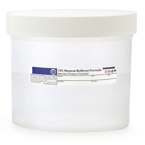 Large Prefill Formalin Jars, 1000mL
