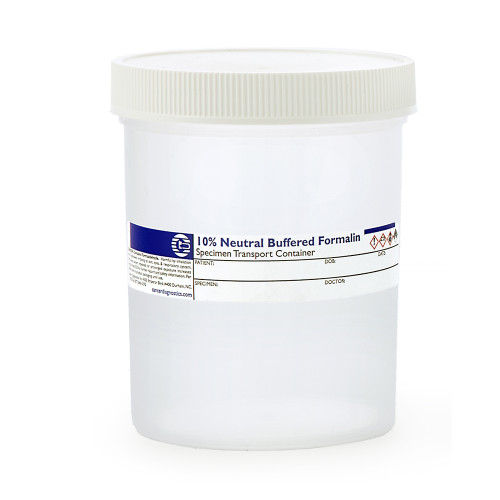 Large Prefill Formalin Jars, 240mL