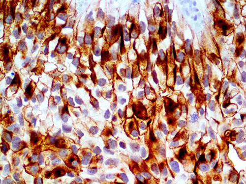 IHC of Uroplakin III on an FFPE Bladder TCC Tissue