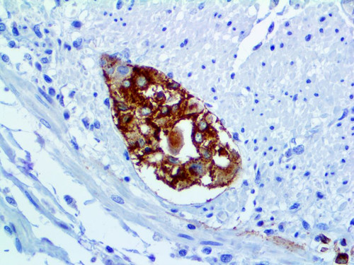 IHC of Varicella Zoster Virus on an FFPE Infected Tissue