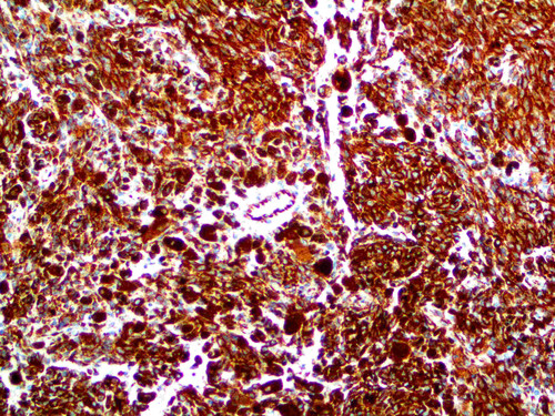 IHC of Vimentin on an FFPE Melanoma Tissue