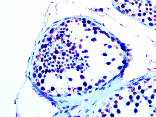 IHC of WT1 on a FFPE Testicular Cancer Tissue